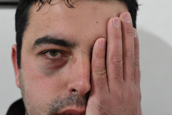 Professor diz ter sido agredido por aluno em escola de Curitibanos