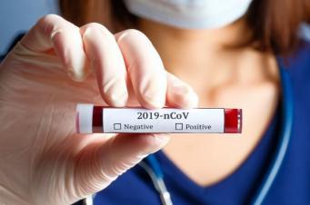 Coronavírus em SC: um panorama do vírus no estado